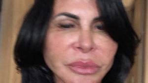 Gretchen diz ter amado resultado de novo procedimento estético (foto: Reprodução)