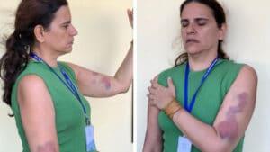 Renata Fernandes com hematomas nos braços após acusar ex-chefe de agressão na TV Câmara de Natal (foto: Arquivo pessoal)